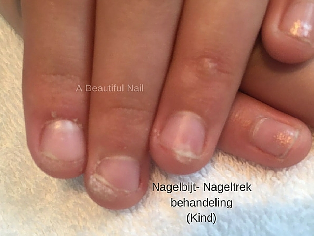 Nagelbijt Nageltrek behandeling