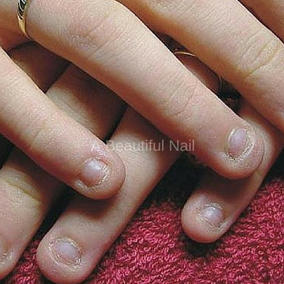 Nagelbijt Behandeling Nageltrek behandeling