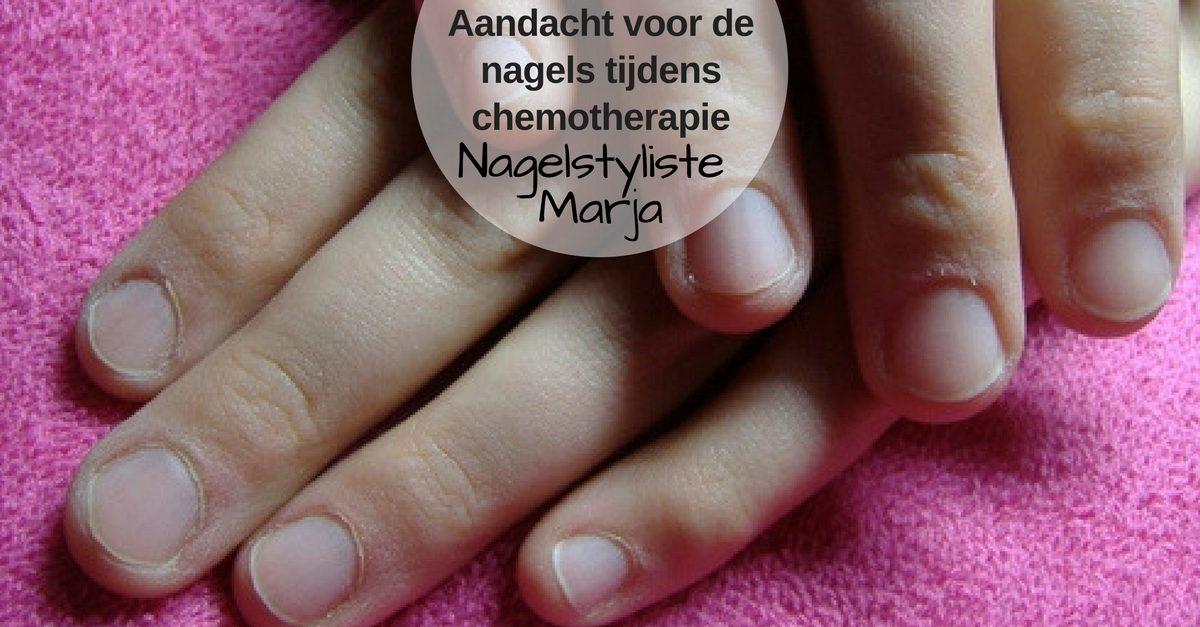 Aandacht voor de nagels tijdens chemotherapie. Handen van een dame met kanker
