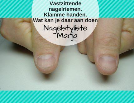 Vastzittende nagelriemen of klamme handen wat kan je daar aan doen. Twee duimen waarvan de nagelriemen erg vast zitten