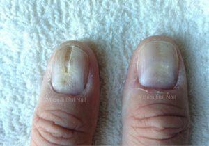 Last van groefjes in je nagels