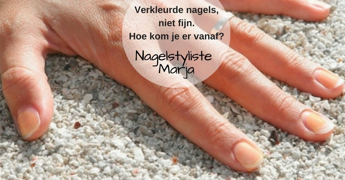 3 tips om van je verkleurde nagels af te komen. hand met gele nagels.